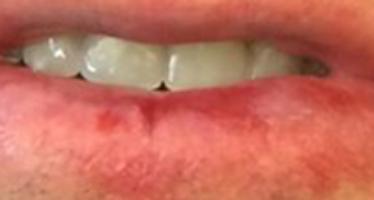 Toma de decisiones en Gerodontologia. Reacción adversa oral de Tamsulosina. Reporte de un caso.