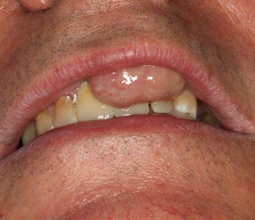 Figura 1. Tumoración en la premaxila que provoca desplazamiento labial.