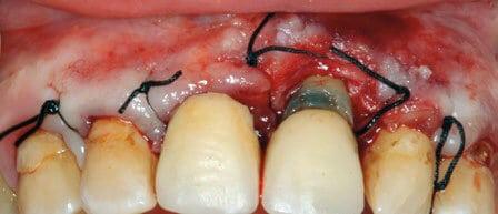 Figura 4. Reposición del colgajo mediante sutura.