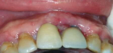 Figura 5. Aspecto tras 15 días de la cirugía.