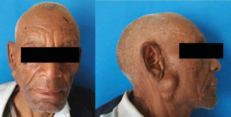 Figuras 1 y 2. Tumefacción indolora en lado derecho de la parótida de gran tamaño y de aspecto nodular, de consistencia firme a la palpación.