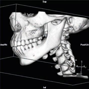 Foto 15. Regeneración del defecto óseo crítico.