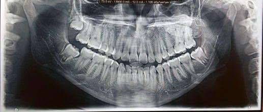 Foto 23. Ortopantomografía a los dos años de la cirugía de la recidiva.