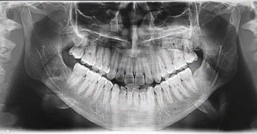 Foto 24. Ortopantomografía a los cinco años de la cirugía de la recidiva.