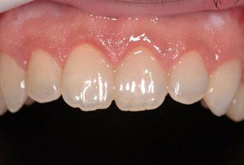 Arcada superior frontal zona anterior. Realizado el tratamiento.