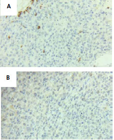 Tinción IHQ con marcadores estudiados negativos. 6a) Microfotografía 40x. CD3 (-); 6b). Microfotografía 40x. CD30 (-). (Figura 6)