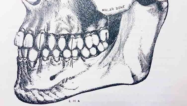 Clase I. (Dibujo original de E.H. Angle)