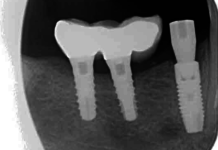 Radiografía periapical de diente 44 con corona protésica (Figura 1).